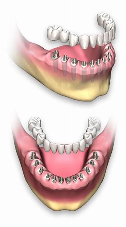 Dental Arch Implants Removable Implant Non Prosthetics