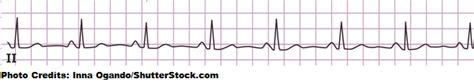 calculate  heart rate   ekg strip     rule