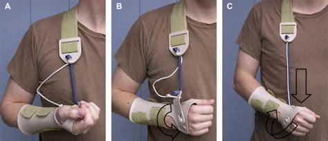 dynamic supination flexion splinting   postoperative