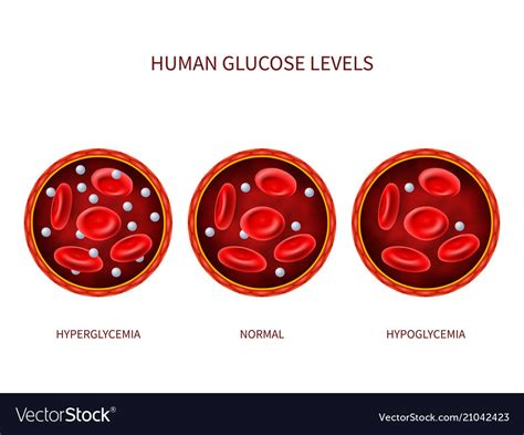 human glucose levels hyperglycemia normal vector image