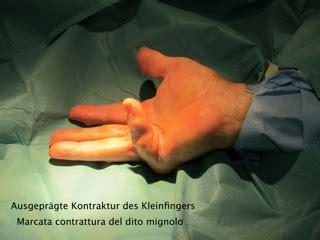perkutane nadelfasziotomie dr frank nienstedtdr frank