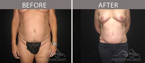 Tummy Tuck Before & After Photos Plastic Surgery Associates Greenville Sc Eyeballs Halloween Folding Pallet Boxes Uline Bags Surgeons Seattle Area 4x8 Sheets Of Clear Resin Asfa