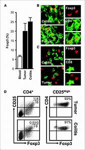 Foxp3 Defines Regulatory T Cells In Human Tumor And Autoimmune Disease
