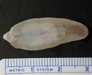 CDC - DPDx - Fascioliasis