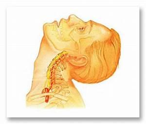 Остеохондроз симптомы у взрослых лечение