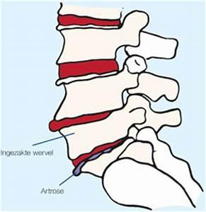 Artrose Knie, fysiotherapie helpt u met specifieke oefeningen
