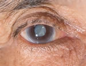 Cataract, Glaucoma  Glaucoma Cataract