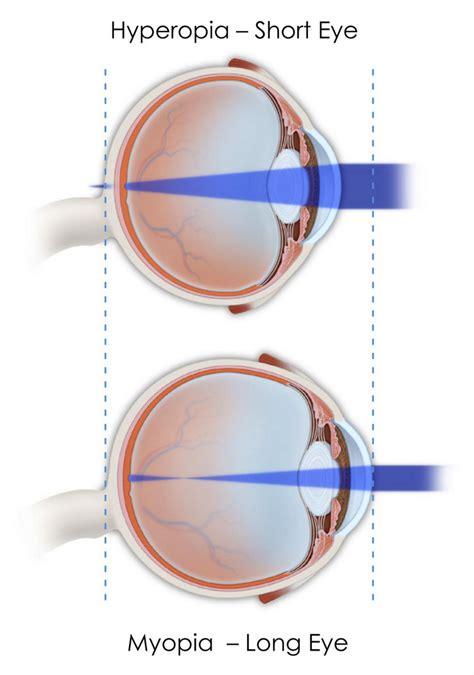 si e t ision miopia si hipermetropia defecte de convergenta ale ochiului