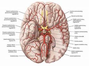 What Is Vascular Dementia Symptoms  Causes  Stages  U0026 Life Expectancy