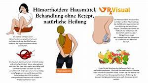 Natürliche Mittel Gegen Mücken : behandlung h morrhoiden salbe hausmittel symptome schwangerschaft ~ Whattoseeinmadrid.com Haus und Dekorationen