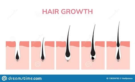 follicle cartoons illustrations vector stock images