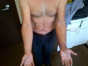 Biceps Tear