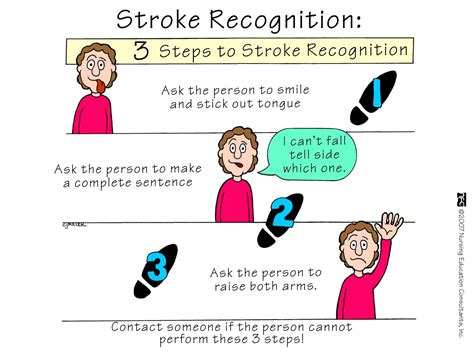 N364  Stroke At Capital University  Studyblue. Ada Compliant Signs Of Stroke. Hemiplegic Migraine Signs Of Stroke. Petechia Signs. Block Signs. Recognize Signs. Immigration Signs. Caution Signs. Baga Signs