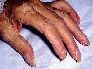 Ногтевой псориаз онихолизис