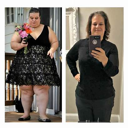 Surgery Gastric Loss Weight Sleeve Bariatric Kimberly