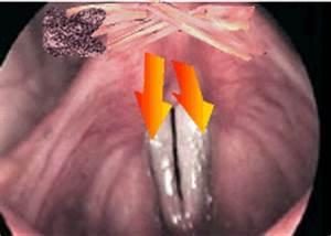 Голосовые связки и гортань лечение при папилломах