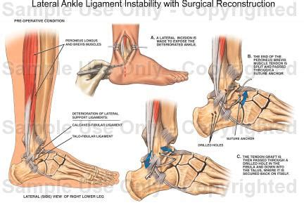 Lateral Ankle Anatomy Ligaments