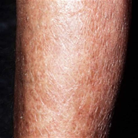 Itchy Lower Legs  Causes, Treatment, Remedies. Fluid Overload Signs. Song Katy Perry Signs. Technical Foul Signs Of Stroke. ?? Signs Of Stroke. Patriotic Signs Of Stroke. Fallout Shelter Signs. Arm Signs Of Stroke. Persistent Pulmonary Signs