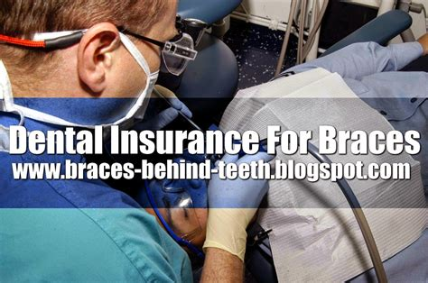 Dental plans usually pay a maximum of $1,000/year after the deductible which isn't much. June 2014
