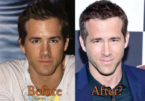 chris owen ear surgery ryan reynolds plastic surgery before and after