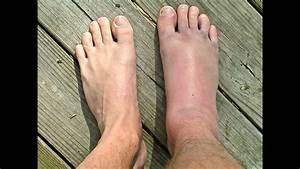 Sprained Or Broken Ankle     Doctor Guide