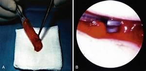 Healing Of Knee Ligaments And Menisci