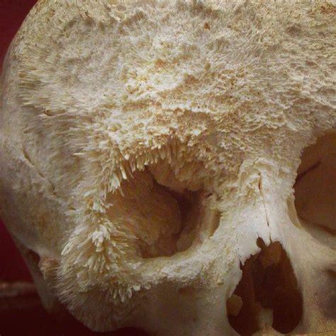 bone cancer pictures skull places  visit pinterest