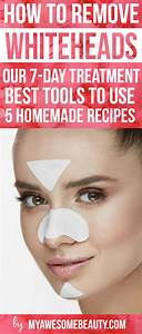 Best 25+ Whiteheads under eyes ideas on Pinterest | Dark ...