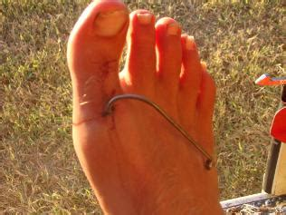 Fishing Boat Accident Gladstone by Professional Fisherman Gets Fish Hook Embedded In Own Foot
