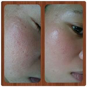 Professional Derma Roller Micro Needling Therapy System