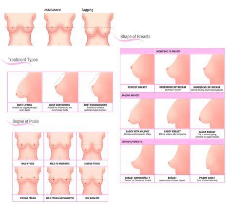 99 Off 15 For 10 Sessions Of Bust Maximiser Treatments