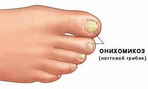 Лечение грибка на ногтях дегтем