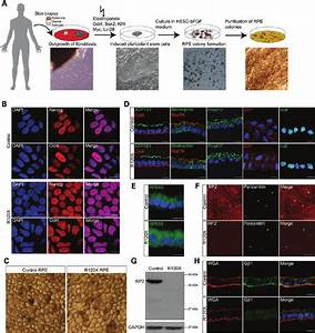 Generation of induced pluripotent stem cells (iPSCs) and ...