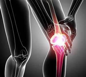 Артроз 3 степени коленного сустава лечение препараты