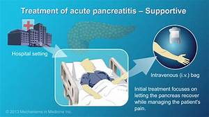 Management and Treatment of Acute Pancreatitis