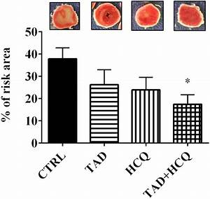 Pde5 Inhibitor Tadalafil And Hydroxychloroquine Cotreatment Provides Synergistic Protection