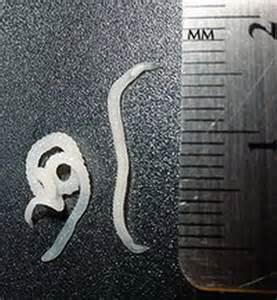 Human Worms Symptoms Intestinal Parasites