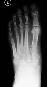Missing The Lisfranc Fracture  A Case Report And Review Of