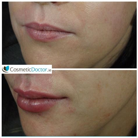 Lip Augmentation Photo Gallery - Cosmetic Doctor Dublin