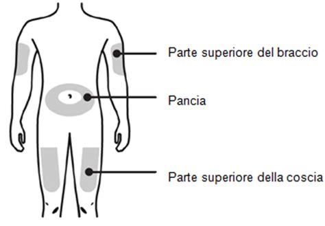 Sedi Iniezione Intramuscolare Neulasta 174 Soluzione Iniettabile In Siringa Preriempita