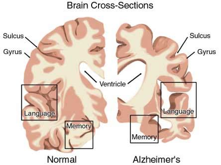 Learn about alzheimer's symptoms, causes, tests and treatments. In the News ...