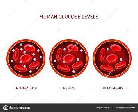 menschlichen glukose ebenen normal hyperglykaemie