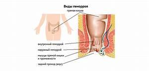 Фитолакс от геморроя