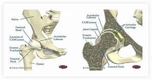 Hip Arthroscopy Anatomy