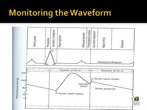 Arterial Line Set-up And Hemodynamic Monitoring
