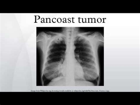 Pancoast Tumor  Youtube. Independent And Assisted Living. Mechanical Engineer Job Responsibilities. Masters Experimental Psychology. Law Firm Invoice Template Nurses Aide Schools. What Is The Macbook Air Allnet Flat Vergleich. Symptoms Of Spleen Injury Garage Door Replace. Vinyl Siding And Windows Med Waste Management. Mission Critical Computing Stock Market Photo