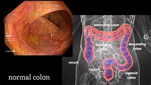 Colonoscopy  A Journey Though The Colon And Removal Of