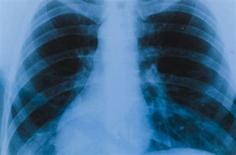 lungs ray detail freepik
