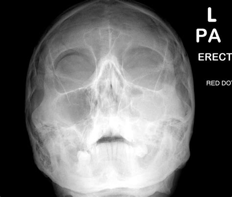 Orbital Floor Fracture Radiology by Broken Orbital Bone X Www Imgkid The Image Kid