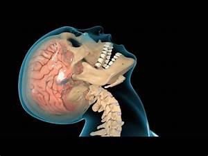 Concussion  Traumatic Brain Injury  Tbi